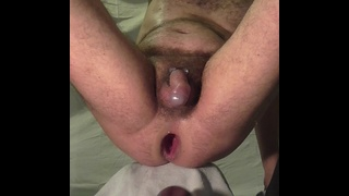 Buco del culo dilatato